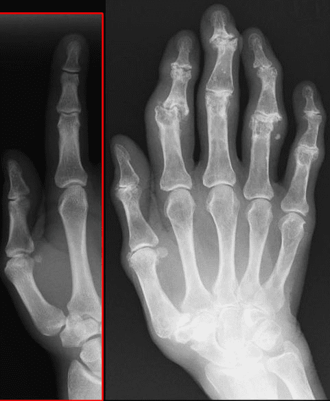 Die Krankheit gribok auf den Nägeln