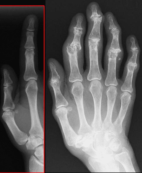 arthrose, gelenkserkrankung