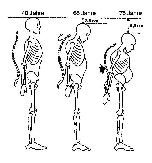 Osteoporose: Was ist die Ursache und welche Übungen helfen wirklich?