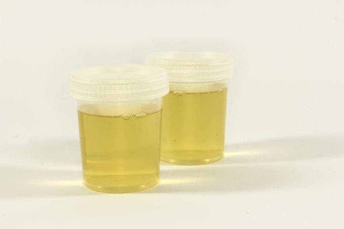 urinbehaelter