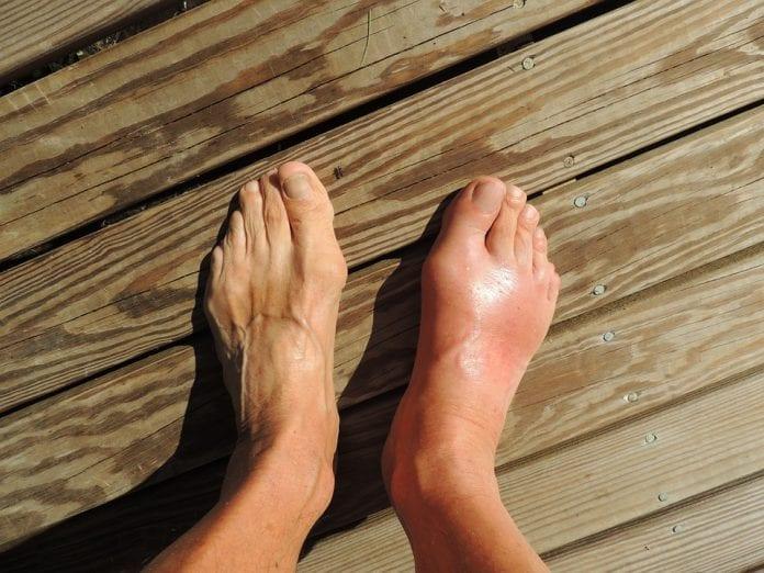 Füße Gicht Schwellung